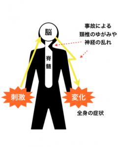 首の怪我は全身に影響する